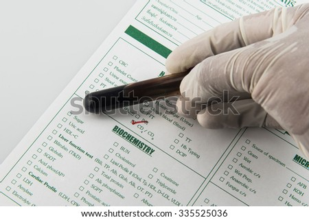 Hiv Test Stock Images, Royalty-Free Images & Vectors | Shutterstock