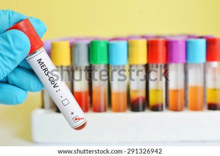 Blood sample with MERS-CoV (Middle East respiratory syndrome coronavirus) positive