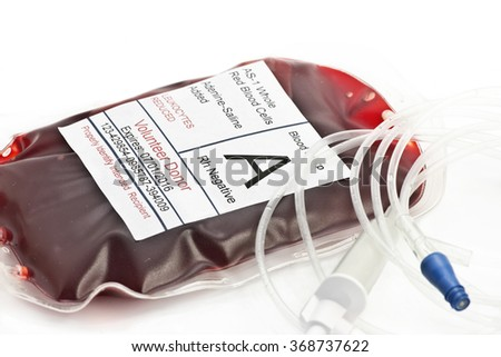 Blood transfusion bag with IV tubing.  - stock photo