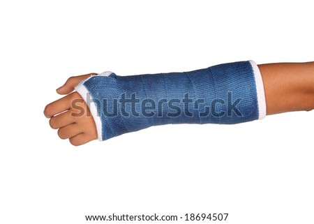 Blue cast on an arm of a child isolated on white background - stock photo