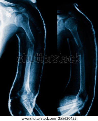 blue film X-ray: humerus fracture and swelling.