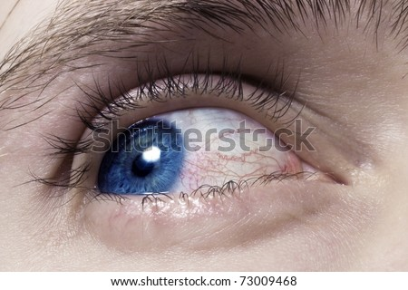 blue men eye with red blood vessels macro - stock photo