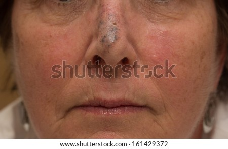 Blue Nevus on the Nose of a Female - stock photo