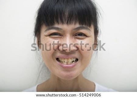 Blurry of women with unattractive yellow and rotten teeth - see more DENTIST related pictures.