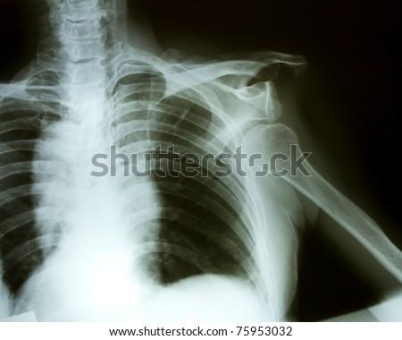 Bone, shoulder dislocation - stock photo