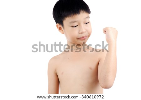 Boy feel pain from a dry itch wound on his body skin isolated on white background - stock photo