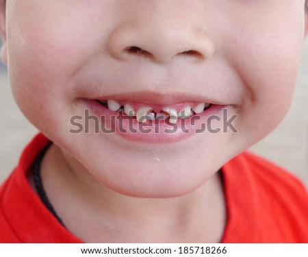 boy with a teeth broken and rotten - stock photo