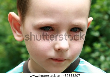 Boy with allergy, conjunctivitis and black rings round his eyes. - stock photo
