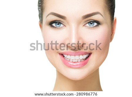 Braces. Beautiful Woman smile close up. Healthy Smile. Closeup Ceramic Braces on Teeth. Beautiful Female Smile with Braces. Orthodontic Treatment. Dental care Concept. Alignment of teeth