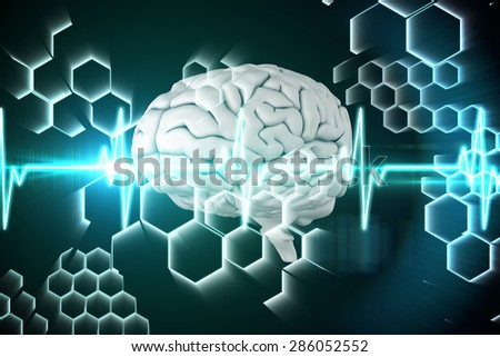 brain against ecg line in black and blue - stock photo