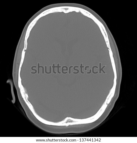 Brain and head CT( computed tomography imaging ) - stock photo