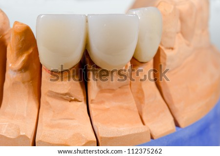 bridge on plaster cast (crop) - stock photo