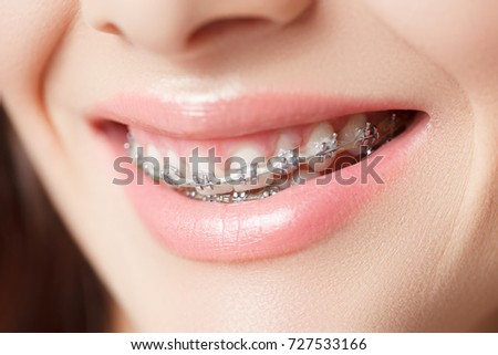 Broad Smile with Self-ligating Brackets. Woman Smiling Showing Dental Braces. Orthodontic Treatment.Beautiful macro.Closeup of healthy female mouth