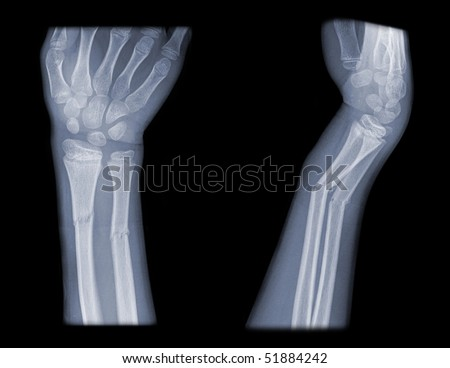 broken arm, side and front view on x-ray, black background - stock photo