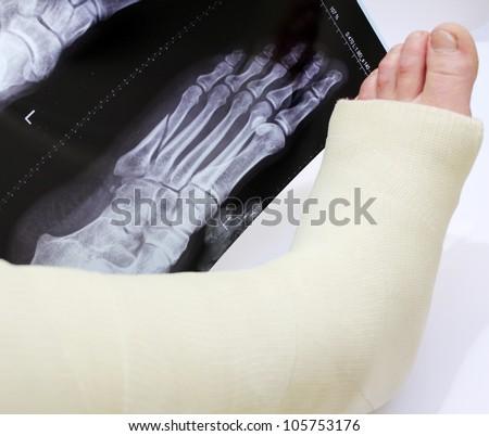 Broken Foot Bandage Broken Foot in a Cast With