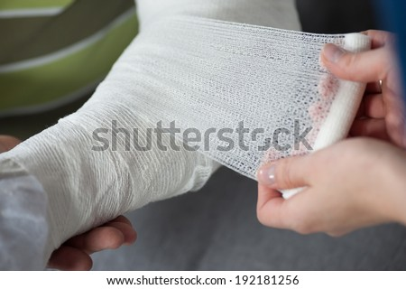 Broken hand and bandaging or wraping - stock photo