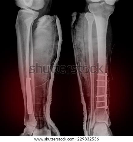 broken leg x-rays image - stock photo