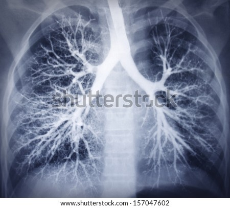 Bronchoscopy image. Chest X-ray. Healthy lungs - stock photo