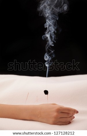 Burning acupuncture needle with black background - stock photo