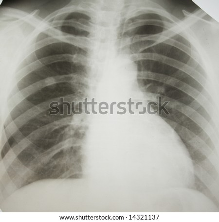Cancer of right lung. - stock photo