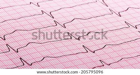 cardiogram (aka electrocardiogram, aka ECG) of heart beat on red paper - stock photo