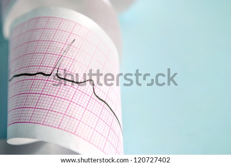 cardiogram on a blue background - stock photo