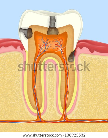 Carious human tooth cross section - stock photo