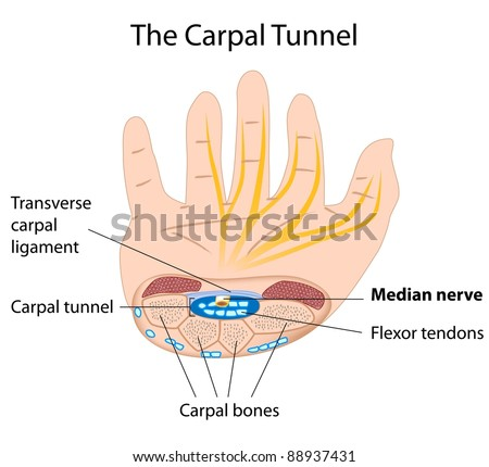 Carpal tunnel syndrome - stock photo
