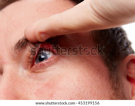 Caucasian man pulls the eyelid with barley on the eyelid on a light background