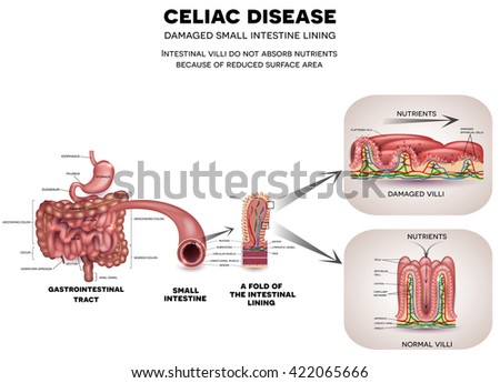 Celiac disease affected small intestine. Healthy and unhealthy villi with damaged cells. Nutrients are not absorbed because of reduced surface area.  - stock photo