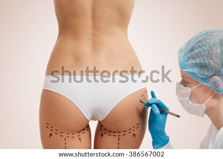 Cellulite cut out. Conceptual image, plastic surgery concept. Beautician touch and draw correction lines on woman. Before plastic surgery operetion. Isolated - stock photo