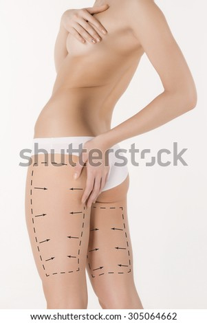 Cellulite removal plan. The black markings on young woman body preparing for plastic surgery. Concept of body correction - stock photo