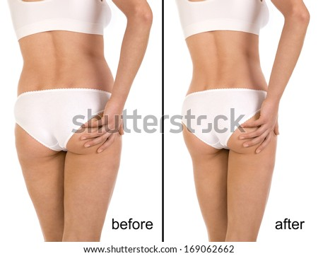 Cellulite treatment program for women, weight loss. Figure of a young girl before and after - stock photo