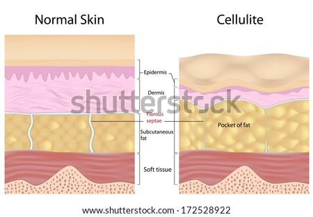 Cellulite versus smooth skin labeled - stock photo