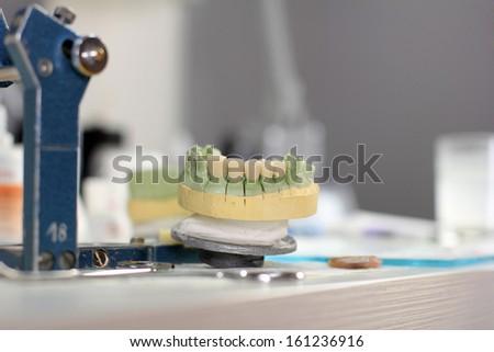 Ceramic crown on gypsum model in laboratory - stock photo