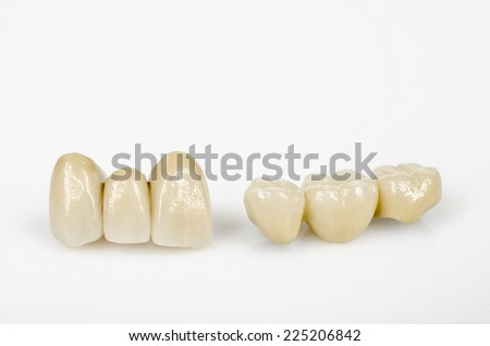 ceramic incisors and side teeth (with metal core) - stock photo
