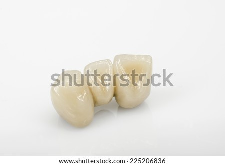 ceramic incisors, back view - stock photo