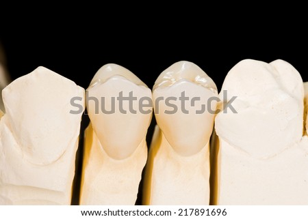 Ceramic premolar crowns  on isolated black background - stock photo