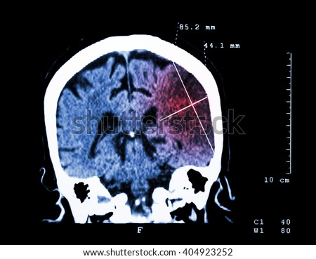 Cerebral infarction at left hemisphere ( Ischemic stroke ) ( CT-scan of brain ) : Medicine and Science background - stock photo