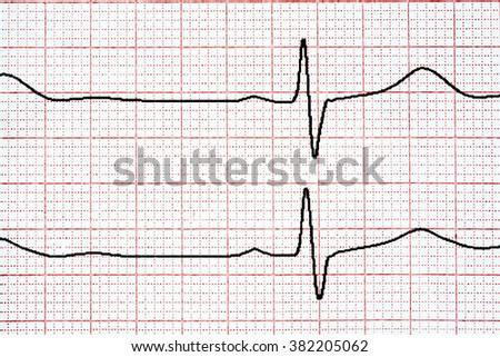 Chart background. Analytic concept. Cardio diagnosis ekg - stock photo