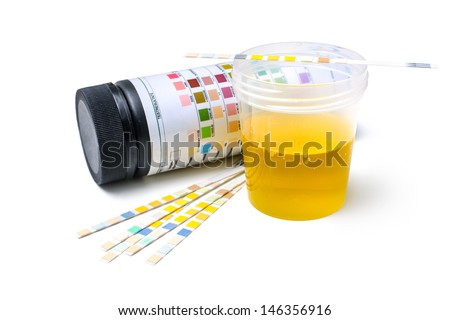 Check-up. Medical report and urine test strips - stock photo