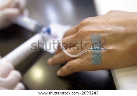 chemotherapy - stock photo
