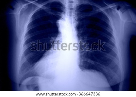 Chest and breast Xray photo