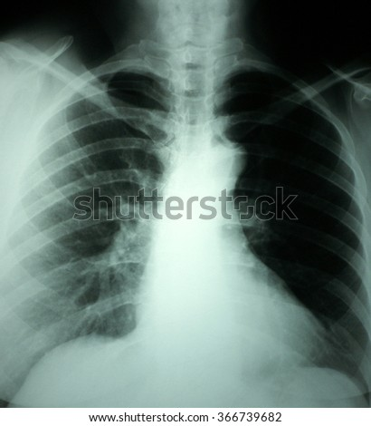 Chest and lungs Xray photo
