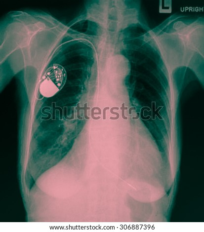 Chest with the pace-maker - stock photo
