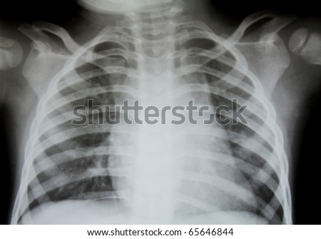 Chest x-ray. - stock photo