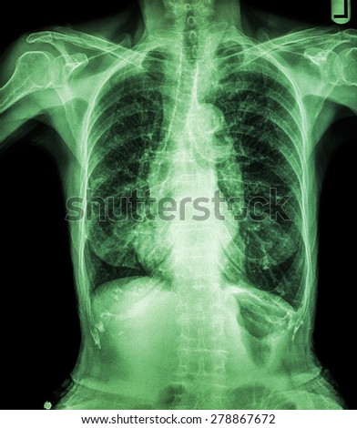 Chest X-ray of old patient ( calcification at rib , trachea , bronchus ) - stock photo
