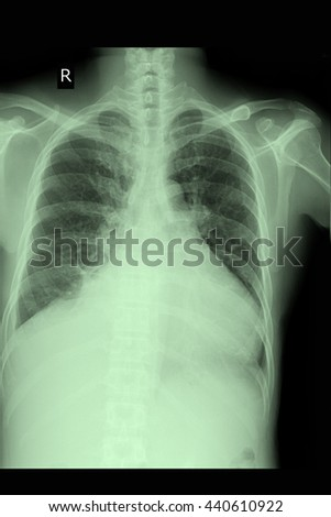 chest xray : CHF : Cardiomegaly - stock photo