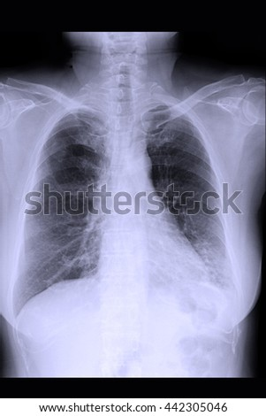 chest xray : show infiltration both lung