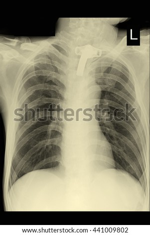 chest xray : tracheostomy tube : lung - stock photo